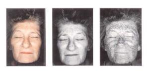 envejecimiento fotoinducido