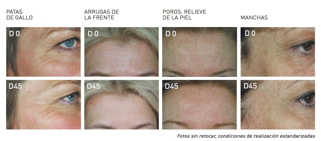 resultados skin-absolute