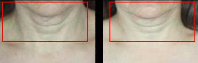 resultados clínicos nutri-filler de filorga
